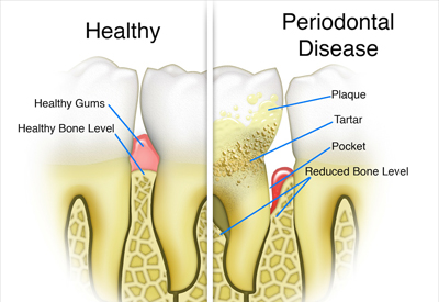 Gum Disease and Tooth and Bone Loss Las Vegas, NV